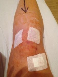 The knee operation, November 2012