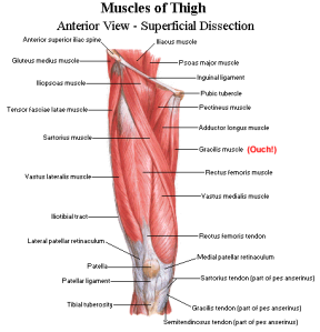 thigh_muscles_superficial_anterior