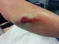 Elbow stitches
